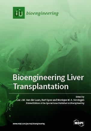 Bioengineering Liver Transplantation