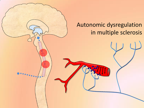Anal spinchter multiple sclerosis