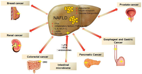 microbiota and cancer treatment The microbiome in cancer immunotherapy exploring the role of the microbiome in cancer and immune response can the microbiome be used to predict treatment.
